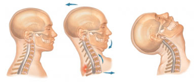 Whiplash Surgery, Whiplash Surgery India, Whiplash, Surgery, Discectomy, Fusion, Recovery