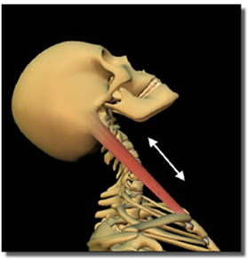 Whiplash Surgery, Whiplash Surgery India, Whiplash, Surgery, Recovery, Neck Pain, Injury