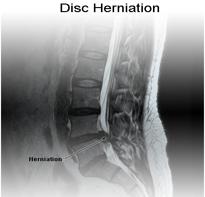 Slipped Disc, Slipped disc surgery India