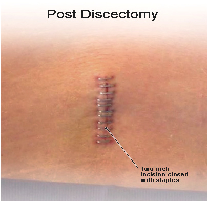 Slipped Disc, Slipped disc surgery India, Slipped disc Treatment India, Slipped, Disc, Spinal Cord