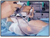 low cost surgery Bangalore, hip replacement,  knee replacement, spine surgery