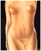 Abdominoplasty Info India, Surgery India, Abdominoplasty Surgery Preparation, Abdominoplasty Recovery