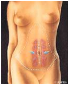 Abdominoplasty Surgery India, Surgery India, Abdominoplasty Surgery Preparation