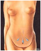 Abdominoplasty India, Abdominoplasty Info India, Abdominoplasty Surgery Preparation