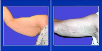Arm Lift Surgery India, Brachioplasty India, Arm Lift India