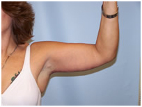 Arm Lift India, Arm Lift Surgery India, Arm Lift Photos, Surgery In India, Armlift
