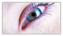 Blepharoplasty India, Eye Lid Surgery India, Blepharoplasty