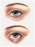 Eye Lid Surgery India, Blepharoplasty, Eye Lid Surgery, Blepharoplasty India, India Eye Lid