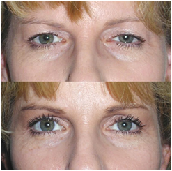 Eye Lid Surgery, Blepharoplasty India, Blepharoplasty Recovery