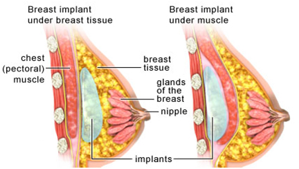 Breast Augmentation Surgery India, Breast Lift Raises India, Breast Augmentation Surgery India