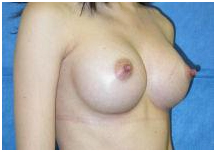 Breast Augmentation Surgery India, Breast Augmentation, Breast Implant India, Breast Enlargement