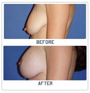 Breast Lift Surgery India, Breast Lift India, Breast, Breast Lift Surgery Pictures