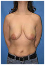 Breast Lift India, Breast, Breast Lift Surgery Pictures, Breast Lift Surgery Photos