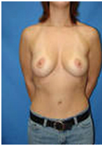 Breast Lift Surgery India, Breast Lift India, Breast, Breast Lift Surgery In India