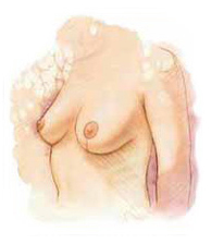 Breast Lift Surgery India, Breast Lift Surgery India, Breast Lift India, Breast