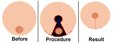 Breast Reduction Surgery India, Reduction Mammaplasty India, Breast Reduction Surgery India
