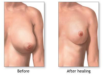 Reduction Mammaplasty India, Breast Reduction abroad, Breast, India Hospital Tour
