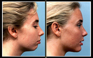 Chin Augmentation Surgery India, Cheek Augmentation Surgery India, Chin Implants
