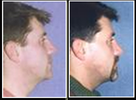 Chin And Cheek Augmentation Surgery, Cheek Augmentation Surgery India, Chin Implants