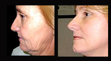 Face Lift Surgery India, Types Of Face Lift Surgery, Benefits Of Face Lift Surgery