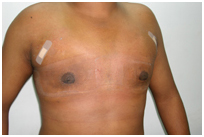 Gyno Surgery India, Breast, Breast Tissue, Common Disorder Of The Male Breast, Gynaecomastia Surgery India