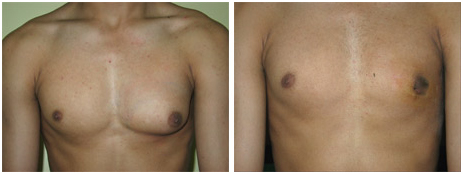 Gynaecomastia Surgery India, Gyno Surgery India, Breast Tissue, Gynaecomastia Surgery India