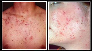 Laser Scar Removal, Scar Removal Creams, Scar, Scar Improvement, Effective Scar Removal