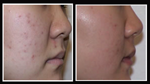 Scar Removal Surgery, Scar Removal Creams, Scar, Scar Improvement, India Hospital Tour