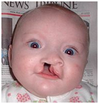 Cleft Lip Surgery, Cleft Lip, Upper Lip, Cleft Palate