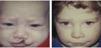 Upper Lip, Cleft Palate, Oral Clefting, Cleft Lip And Palate, Lip Surgery