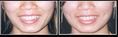 Dimple Surgery, Cheek Dimple Creation, Dimple Plastic Surgery, Face Dimples
