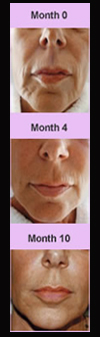 Face Sculpting, Sculpt A Face, Sculpt, Face Exercises, Facial Exercises, Face Sculpting Foundation