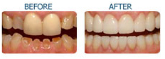 Cosmetic Dentistry India, Dental Surgeon India,Affordable Dentistry India, Dental Implant India