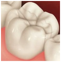 Mercury Fillings, Dental Cavity Fillings Delhi India, Amalgams Fillings, Enamel Fillings