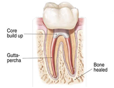 Cost Root Canal Treatment Hospital India, Root Canal Treatment Delhi India