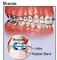 Dental, Treatment, Invisible Braces, Dentist, India