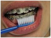 Orthodontists Dental Braces, Dental, Treatment, Braces (Orthodontic Treatment) Services, Dentist, India