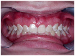 Low Cost Teeth Polishing Fluoride India, teeth whitening cost dentist