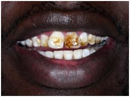 Teeth Polishing Fluoride India Low Cost Teeth Polishing