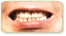 Porcelain Veneers Treatment India,  Porcelain Veneers Treatment  India, Porcelain Veneers Treatment  Hospital Delhi