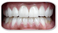 Porcelain Veneers Treatment India, Cost Porcelain Veneers Treatment,  Porcelain Veneers Treatment  India, Porcelain Veneers Treatment  Hospital Delhi