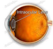 IOL, Intraocular Lens Implantation, Intraocular Lens, India Hospital Tour