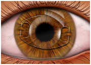 Intraocular Lens Implant, India Intraocular Lenses, Intraocular Lenses
