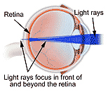 Refractive Errors Surgery, Refractive Errors India, Corrective Eye Surgery, Photorefractive Keratectomy Surgery