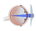 Refractive Errors Surgery, Refractive Error India, Refractive Errors India, Photorefractive Keratectomy Surgery
