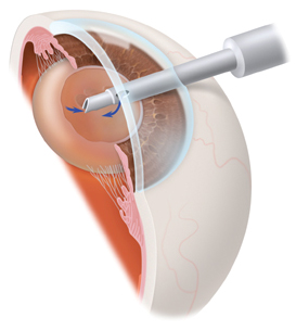 Small Incision Cataract Surgery, Small Incision Cataract Surgery India