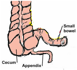 Appendix India, Appendectomy offers info on Appendectomy Appendix Surgery India, Appendix Removal India, Laparoscopic Appendectomy India