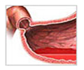 Ulcers Treatment  India, Gastric Ulcers Treatment  India, Cost Duodenal Ulcers Treatment India