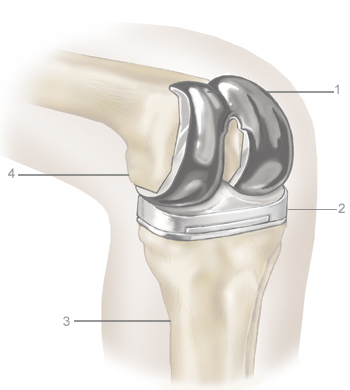 Hip or knee replacement - after - what to ask your doctor