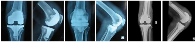 Knee Replacement Surgeon, Knee Pain, Total Knee Replacement Surgery Risks